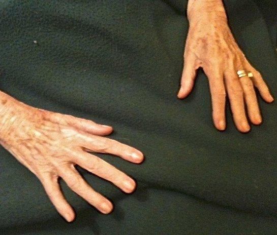 Il bambino dalle mani con i buchi